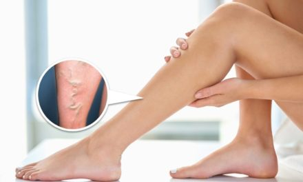 Ultimate Guide to Varicose Veins Treatment in Hong Kong
